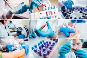 Hands with blood sample