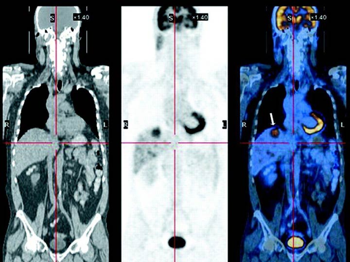 Pet Ct Scan Vs Ct Scan For Cancer Diagnosis