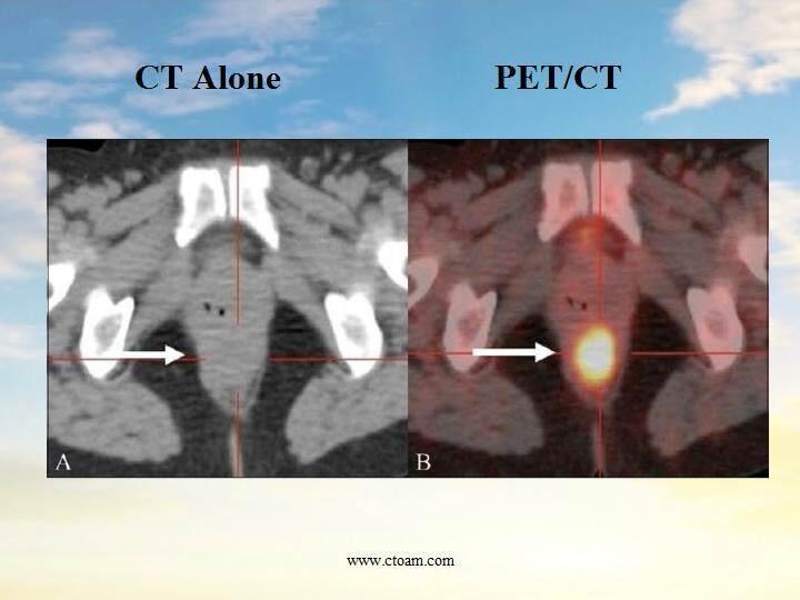 PET-CT Comparison
